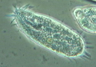 external image ciliate2%20250XZZ%20cropped%20070624.jpg